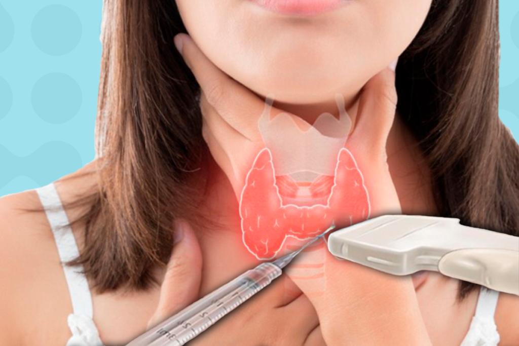 Пункция с УЗИ щитовидной железы